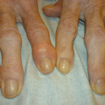 шишки на пальцах