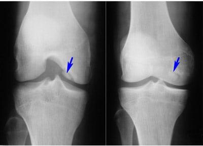 остеофиты коленного сустава фото