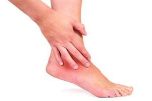 Артрит стопы: симптомы, лечение, фото воспаления