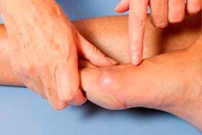 Артрит стопы симптомы лечение фото воспаления