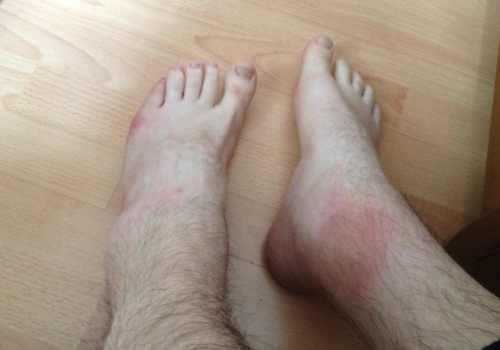 Опухоль около голеностопного сустава травма локтевого сустава лечение