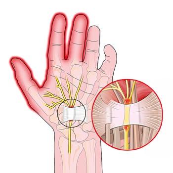 Болят кисти рук чем лечить Суставы