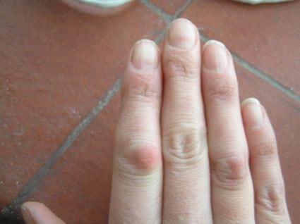Деформация суставов пальцев рук: лечение искривления