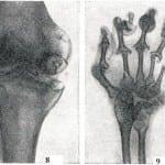 туберкулез суставов