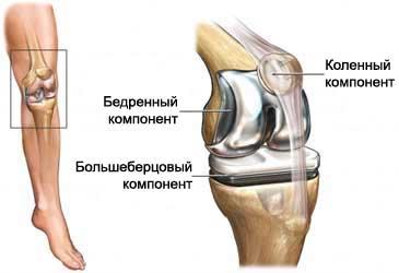 Отзывы о операции эндопротезировании коленного сустава привычный вывих плечевого сустава новосибирск