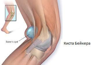 Как снять боль в коленном суставе простым упражнением