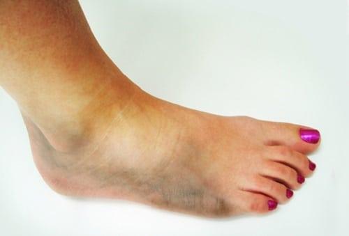 Вывих ноги: лечение, симптомы (фото стопы), признаки
