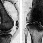 Изображение - Гонит коленного сустава лечение 0-421-150x150