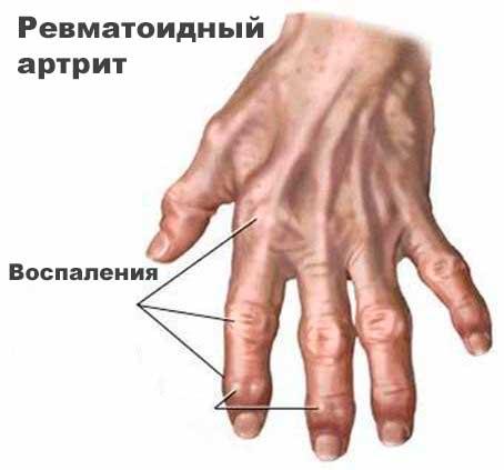 остеоартрит суставов пальцев кистирук