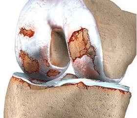 Анализ крови при ревматоидном артрите: показатели СОЭ
