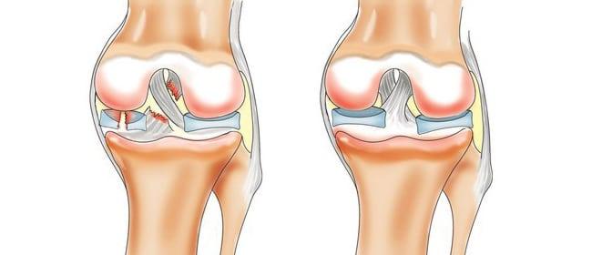 средства лечения коленного сустава