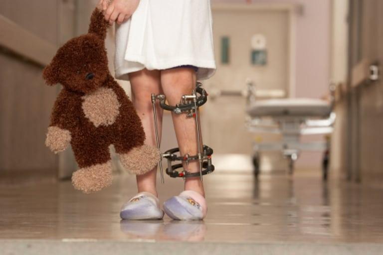 Реактивный артрит у детей: фото, симптомы и лечение