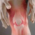 хламидийная форма артрита