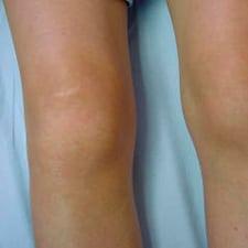 Гемартроз коленного сустава: симптомы, лечение колена