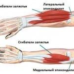 тендиноз сухожилий предплечья