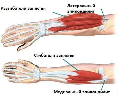 Фурункулез причины и лечение фото в заднем проходе