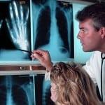 лечение ревматоиодного полиартрита