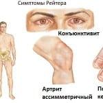 симптомы Рейтера