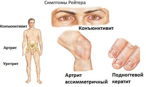 Хламидийный артрит: симптомы и признаки хламидий