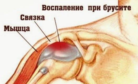 спайки в коленном суставе лечение