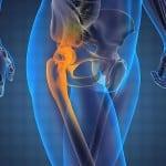 Воспаление в тазобедренном суставе (коксит)