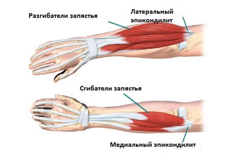 Медиальный эпикондилит локтевого сустава: лечение, фото