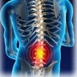 Дорсопатия симптомы, лечение, описание