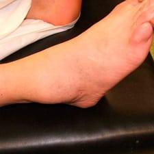 Хруст в голеностопном суставе: почему хрустит голеностоп