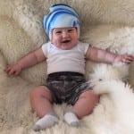 причины боли в коленях ребенка