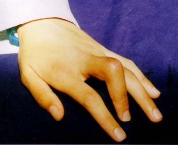 что делать если палец выскочил из сустава