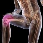Деформирующий артроз коленного сустава  и боли в колене