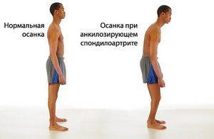 Болезнь Бехтерева у мужчин: фото и симптомы заболевания