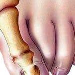 Боль в косточке большого пальца ноги