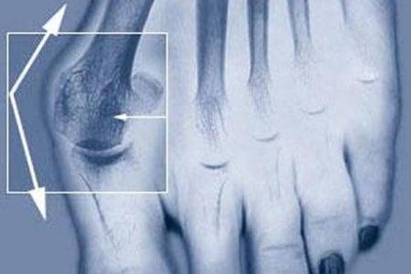 Болит косточка на втором пальце ноги