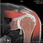 МРТ при растяжении связок плеча
