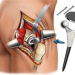 схема эндопротезирования тазобедренного сустава