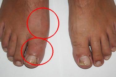 Воспаление сустава большого пальца ноги: лечение, фото