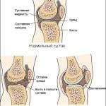 состояние сустава при ревматоидном артрите