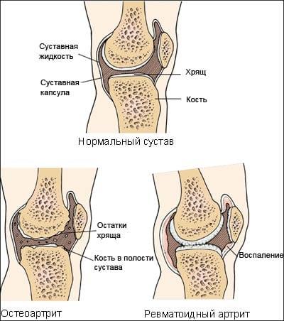 Препараты золота для лечения ревматоидного артрита