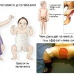 врождденный вывих тазобедренного сустава