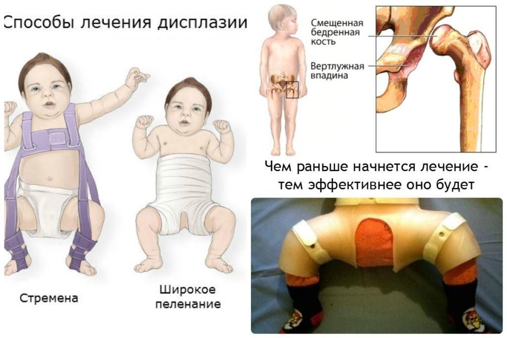 Вывих тазобедренного сустава: симптомы и лечение