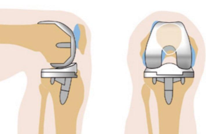 адреса клиник делающих операции по замене тазобедренного сустава