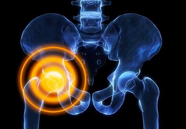 почему боль в колене при ходьбе