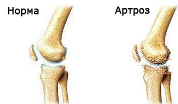 Как при сифилисе болят суставы