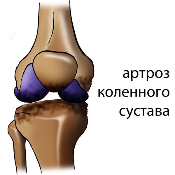 Какой врач лечит артроз тазобедренного сустава