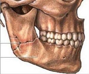 повреждение челюсти сустав