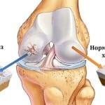 проявляние артроза колена