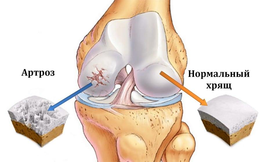 посттравматический артрит коленного сустава лечение народными средствами
