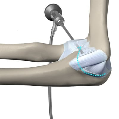 Растяжение связок локтевого сустава: симптомы и лечение