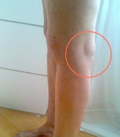 Болят ноги после операции стоп